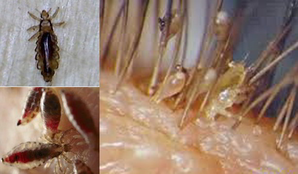 manfaat bawang merah untuk menghilangkan kutu rambut